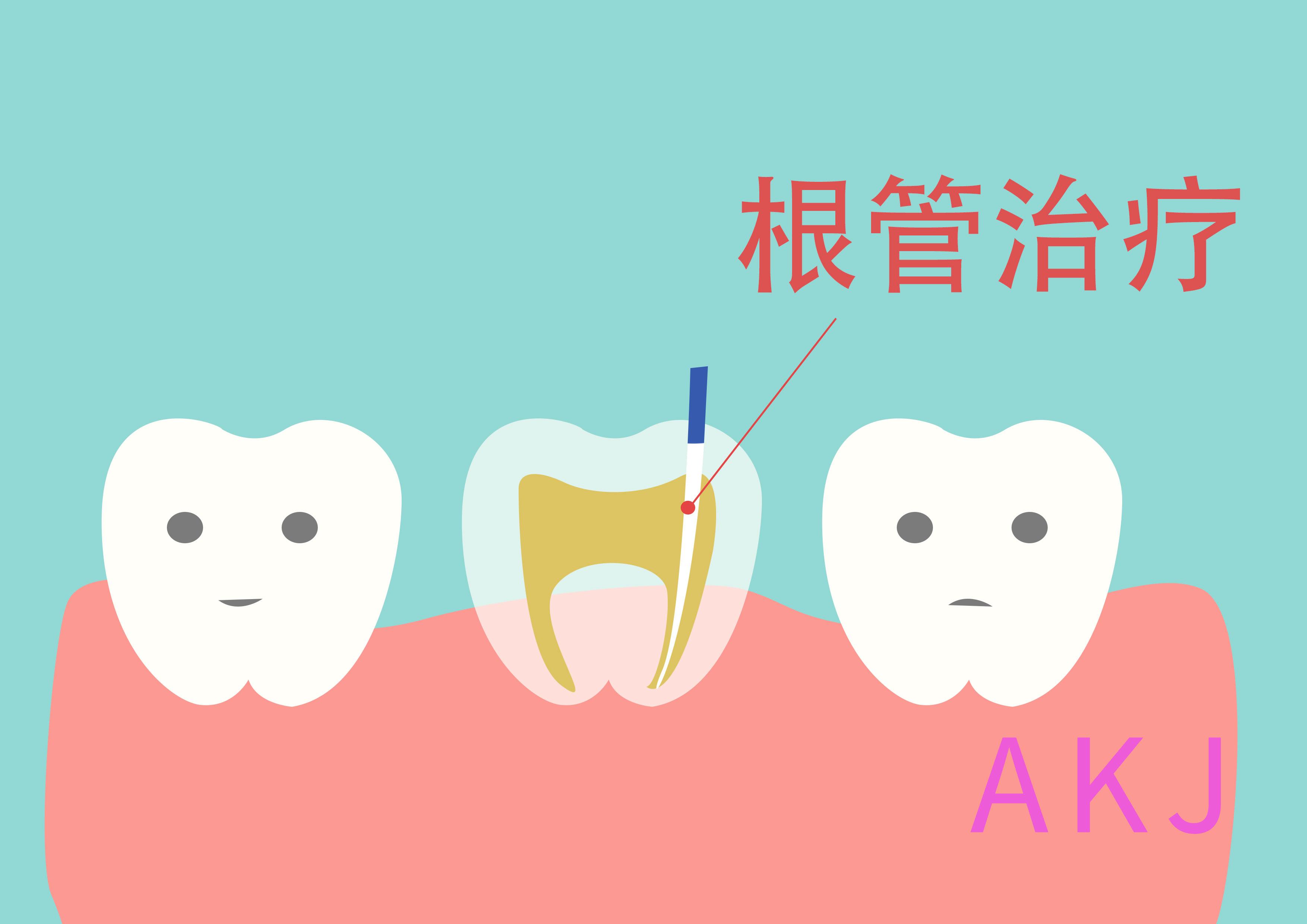 牙髓摘除术与根管治疗