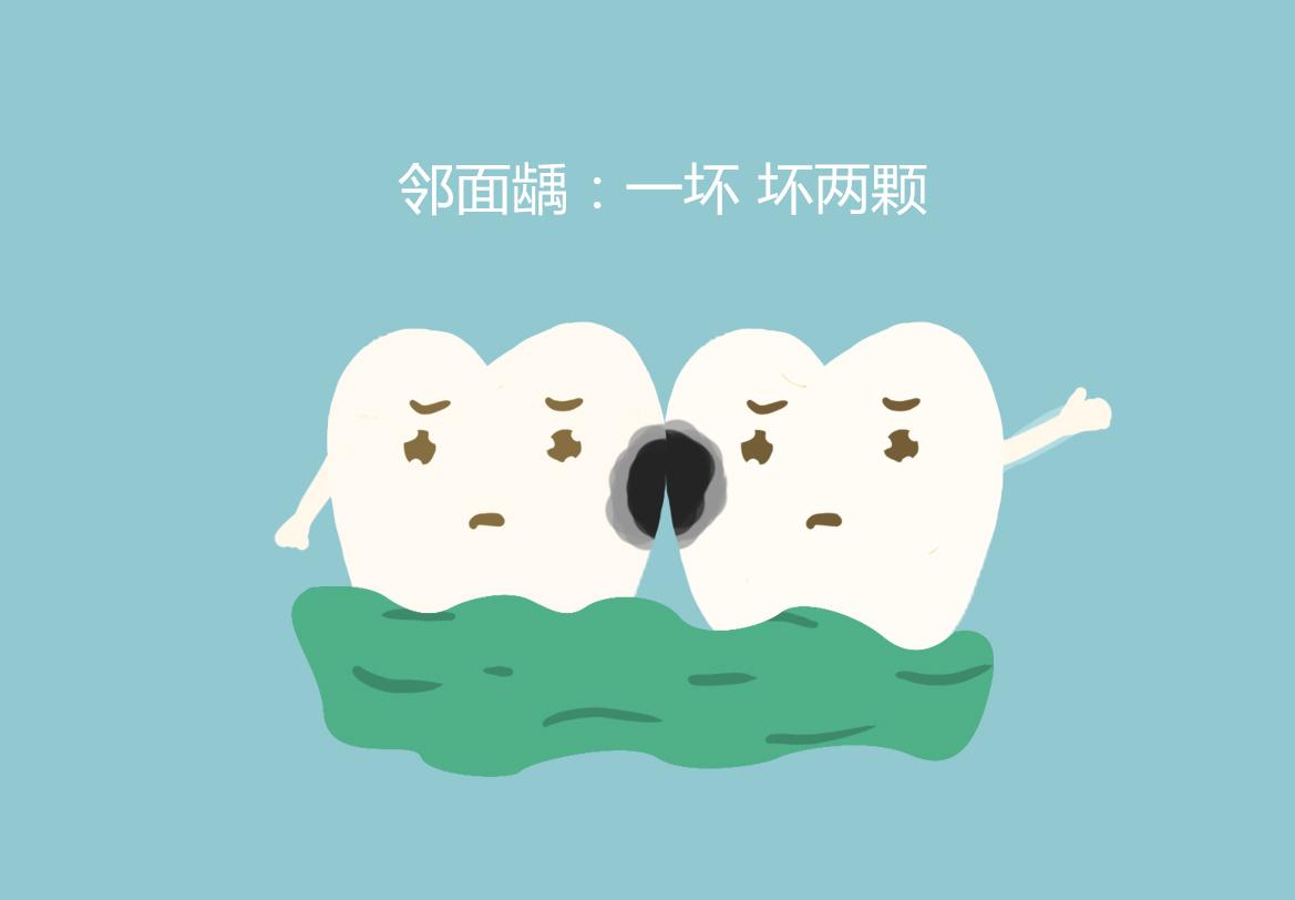 蛀牙造成门牙中间有缝