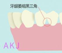 牙齿黑三角如何修复?