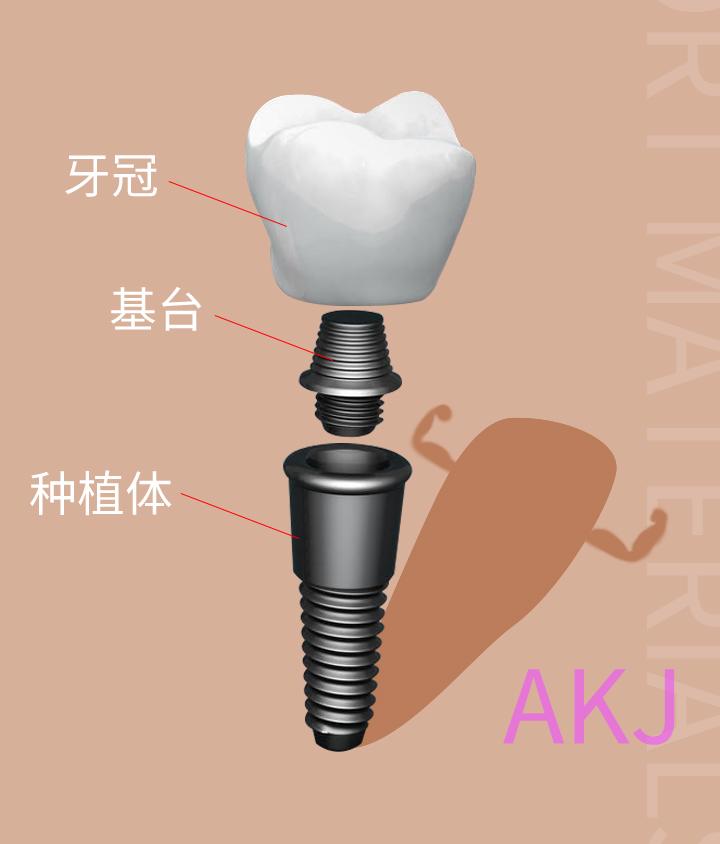 种植牙的结构