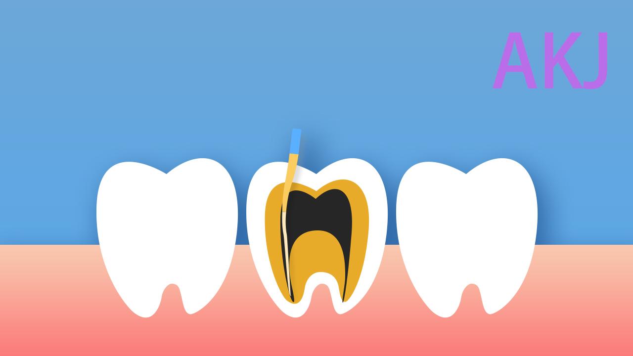 牙神经疼根管治疗