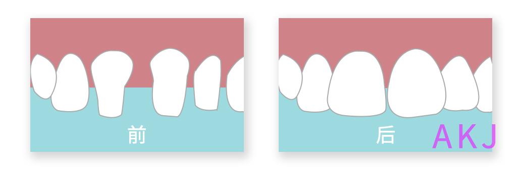 牙齿不齐磨牙做烤瓷桥