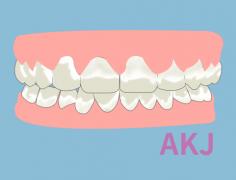 渗透树脂修复前牙好不好,会不会反弹?