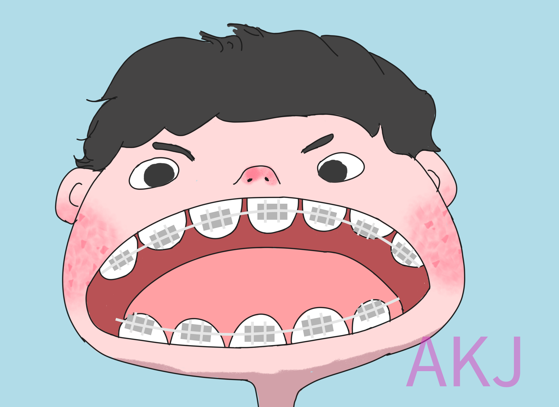 上学时期牙齿矫正的好处