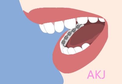 舌侧隐形矫治
