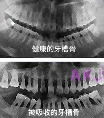 牙槽骨吸收严重