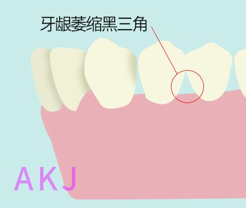 牙龈萎缩、黑三角