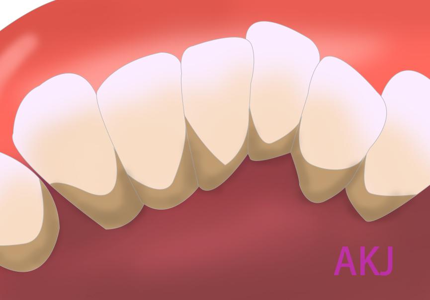 牙齿内侧牙结石多