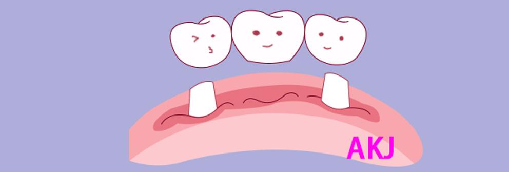 牙齿缺失后做烤瓷牙