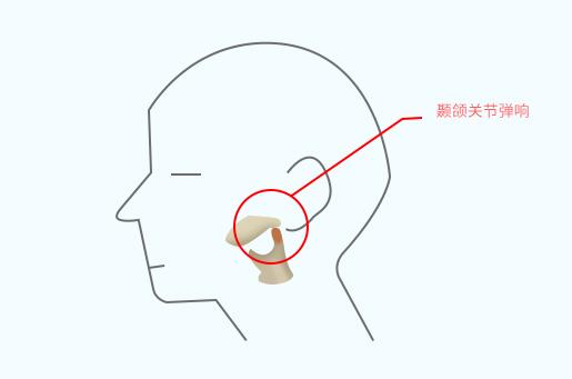颞下颌关节炎