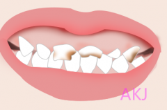 儿童看牙可以用家长的医保吗?