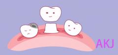 牙冠磨牙会伤害邻牙吗