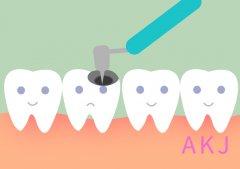 天天刷牙还蛀牙?找个时间去洗牙清除隐患