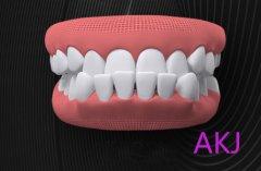 还不知道牙齿不齐的危害?矫正牙齿越早越好?