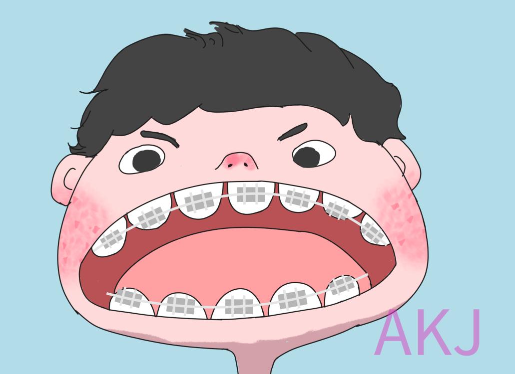 牙齿早期干预治疗示意图片