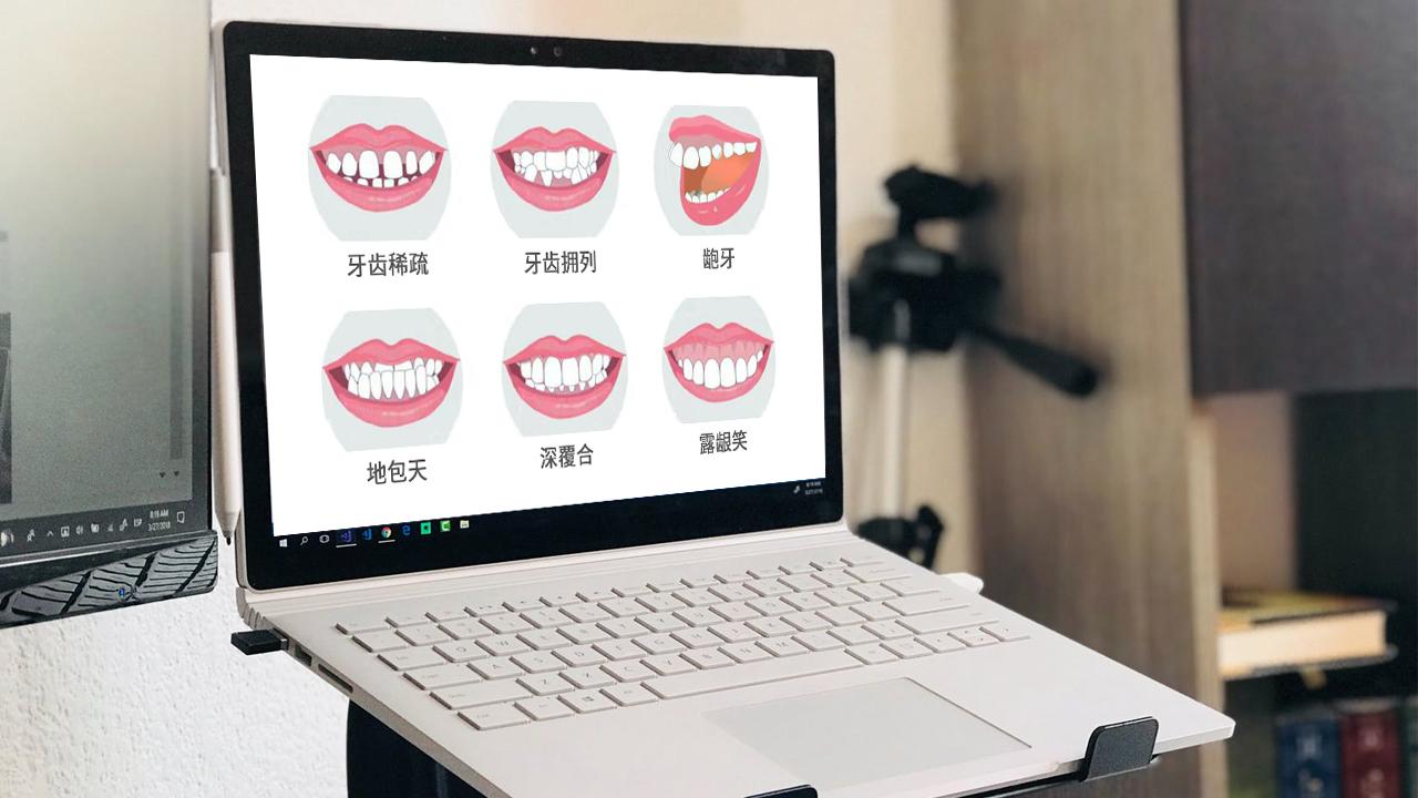 牙齿矫正示意图片
