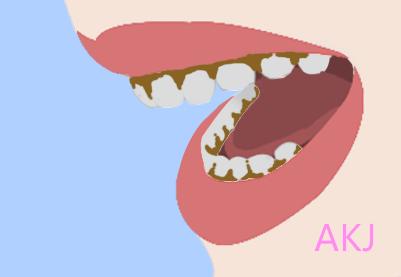牙齿�\渍