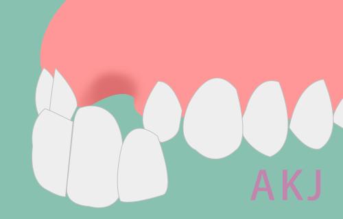 烤瓷牙治疗