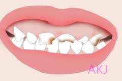 四环素牙怎么都刷不干净,该怎么处理呢