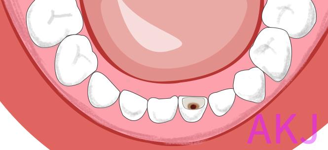 儿童蛀牙补牙
