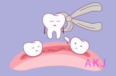 牙齿矫正没拔牙会嘴凸吗?听听医生的解答