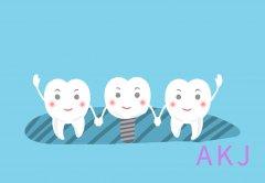 种植前牙和后牙的区别是什么?牢固吗
