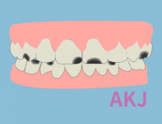 什么原因造成儿童牙齿不好?小孩牙齿不好该怎么办?