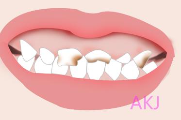 重度氟斑牙