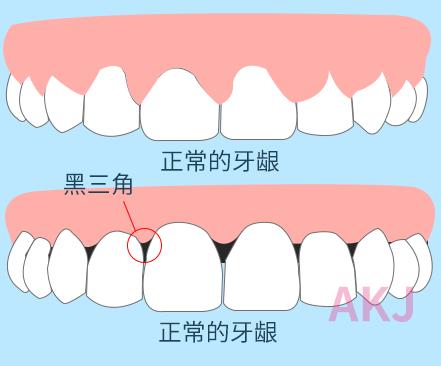牙龈黑三角