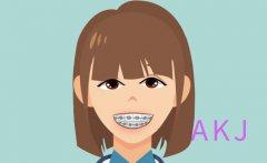 牙齿矫正期间该怎么有效清洁牙齿呢
